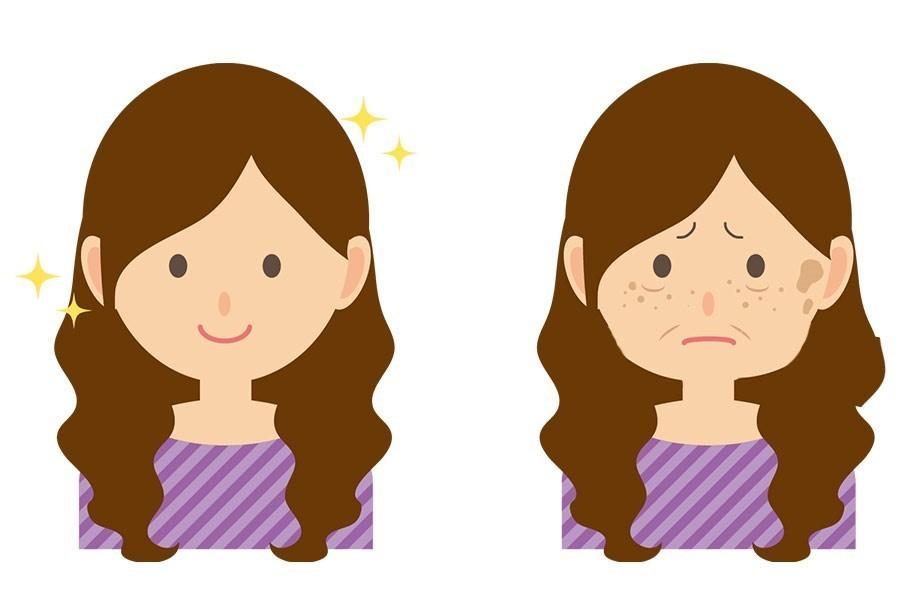 老けて見える女性、 老け顔の特徴